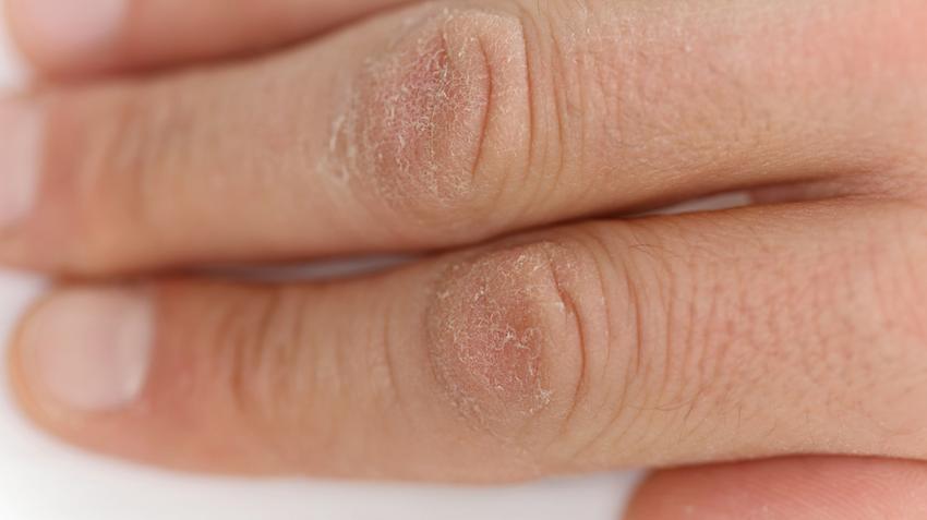 kenőcsök az ujjak artritiszére)