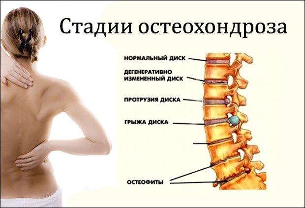 csukló fájdalom, mint kezeli savas kezelés artrózis esetén
