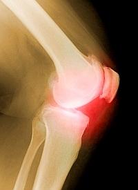 hogyan lehet kezelni a lábszokák fájdalmát ízületi gyulladás dimexiddal