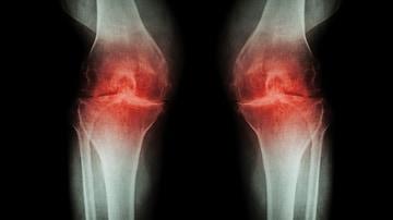 knee osteoarthritis medscape