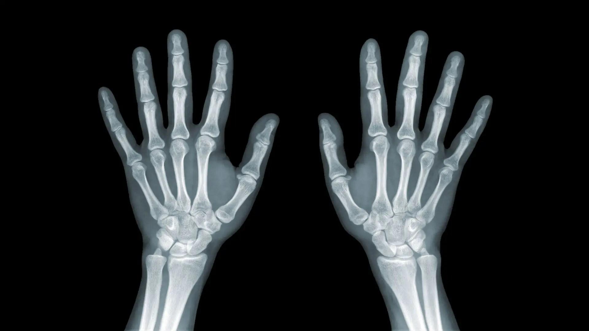 könnyező fájdalom a kéz ízületeiben)