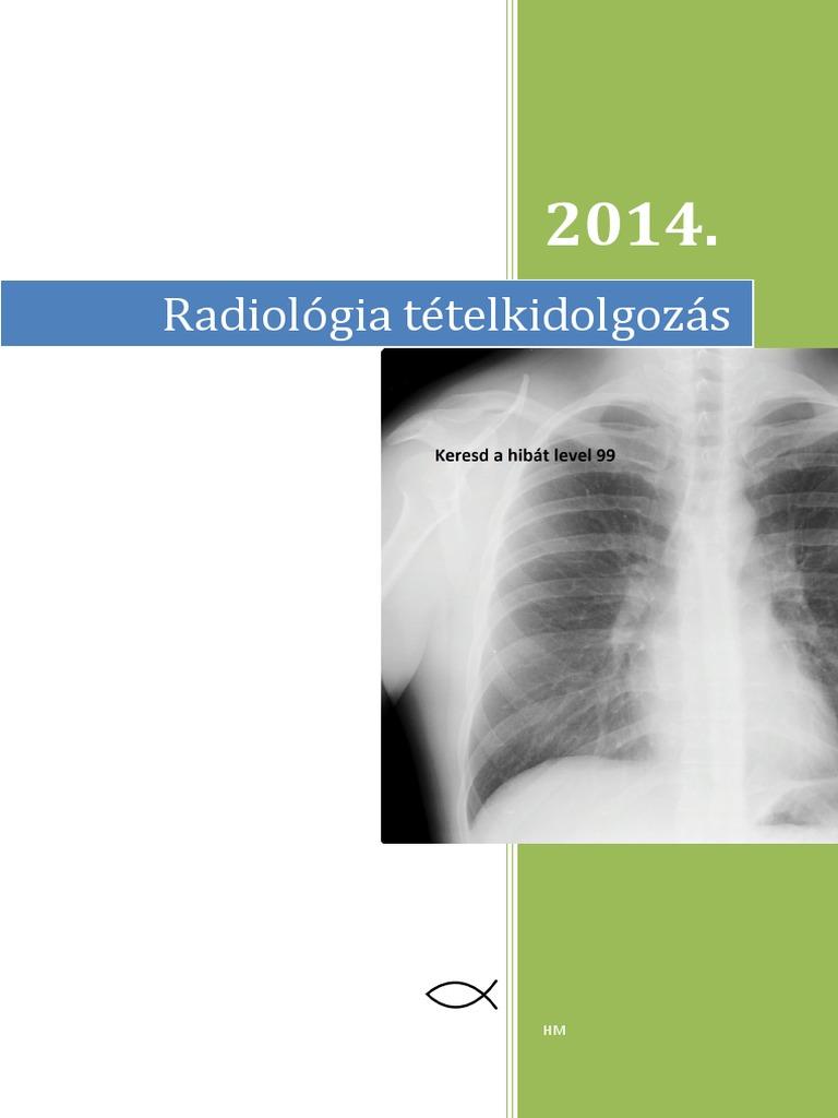 Könyök fájdalom: okai, kezelése és mikor kell meglátogatni az orvost - Ortopédia - 2020