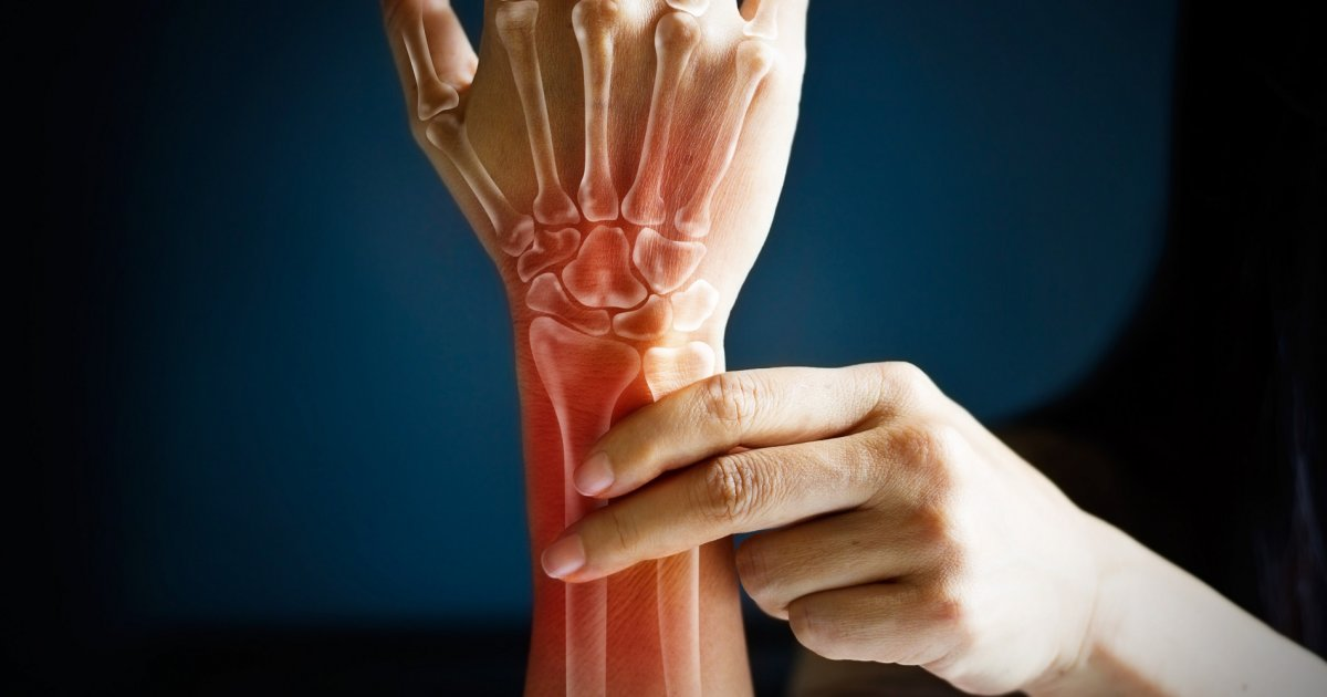 rheumatoid arthritis lehetséges az izületek melegítése hogyan lehet megszabadulni a lábak ízületeinek fájdalmától.