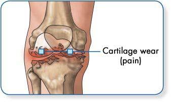 lábízület betegség, osteoarthrosis kezelés)