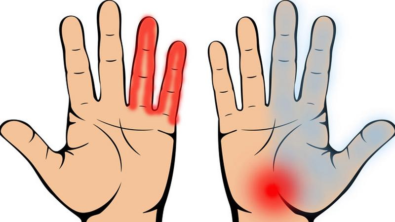 csípőcsonti fájdalom kezelése