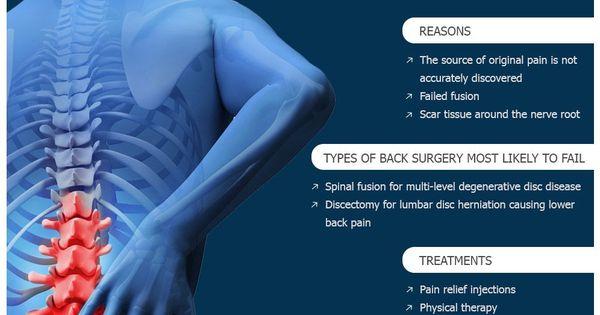 lumbo fájdalom a vállízületben eszköz az osteochondrozishoz