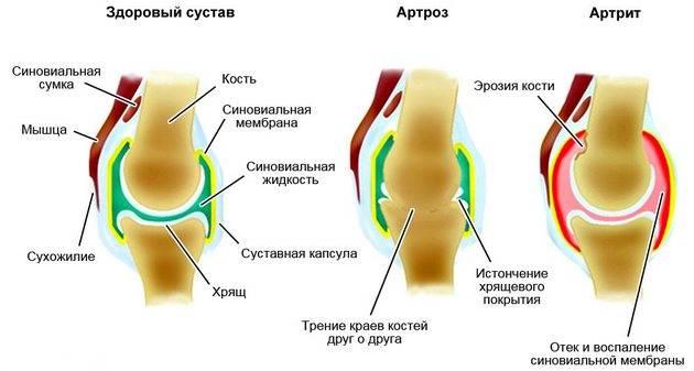 ízületi gyulladás térdízület vdm ízületi kezelés