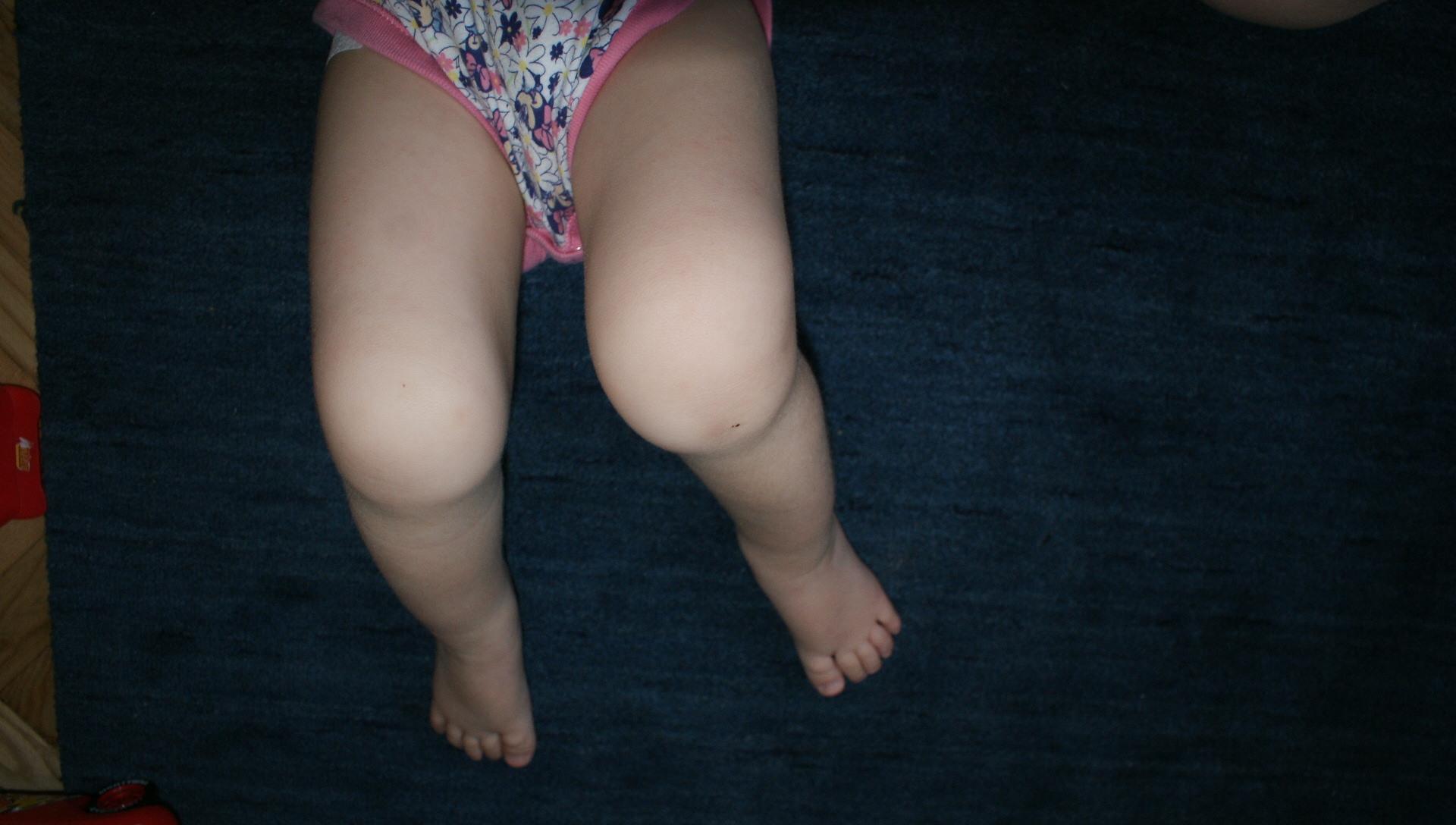 miért fáj a lány a csípőízületben