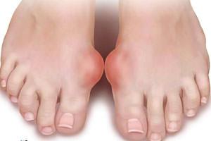 mit kell tenni a lábízületek fájdalmától