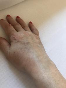 A könyökcsúcs gyulladása (Bursitis olecrani)