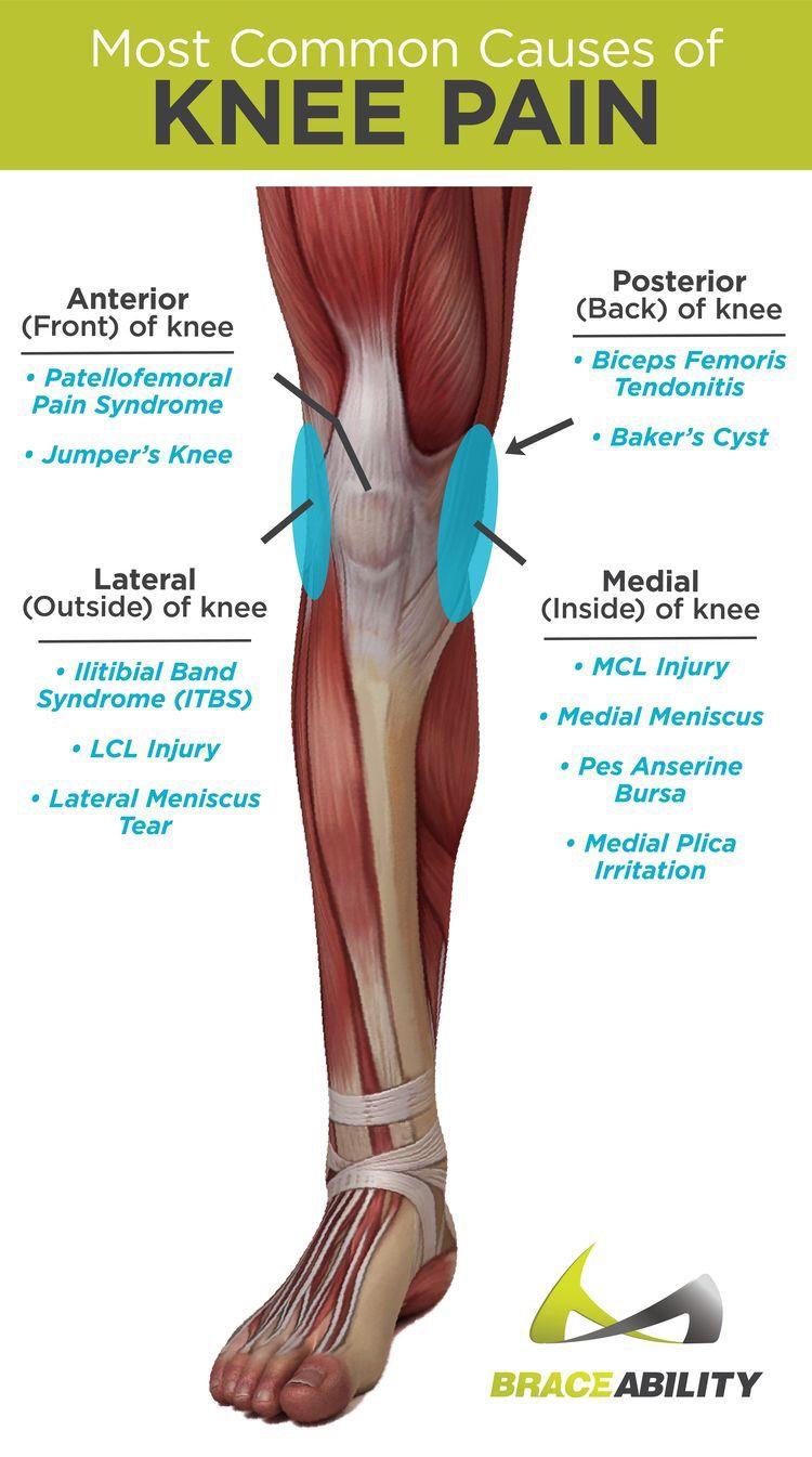 patellofemoral arthrosis kezelés)