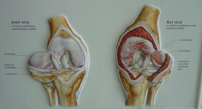 térdízületi ízületek ragasztása és kezelése duzzadt ujjízület kezelése