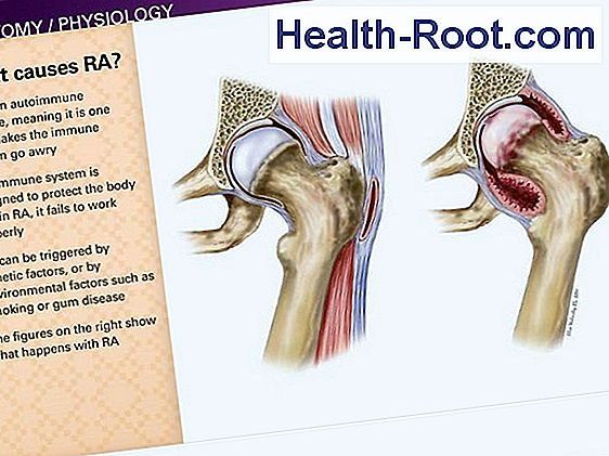 rheumatoid arthritis, mint a kezelés repedés az ízületben ödéma után