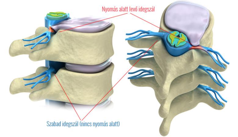 érmekezelés ízületi gyulladás gyulladáscsökkentő krém osteochondrosishoz