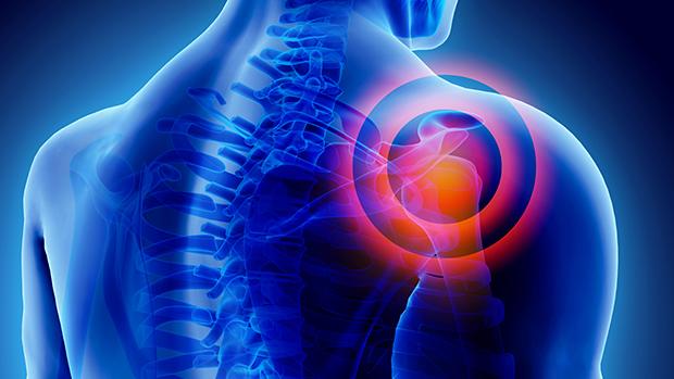 a térdízület súlyos fájdalmainak gyógyszerei ízületek és izmok fájnak a stressz után