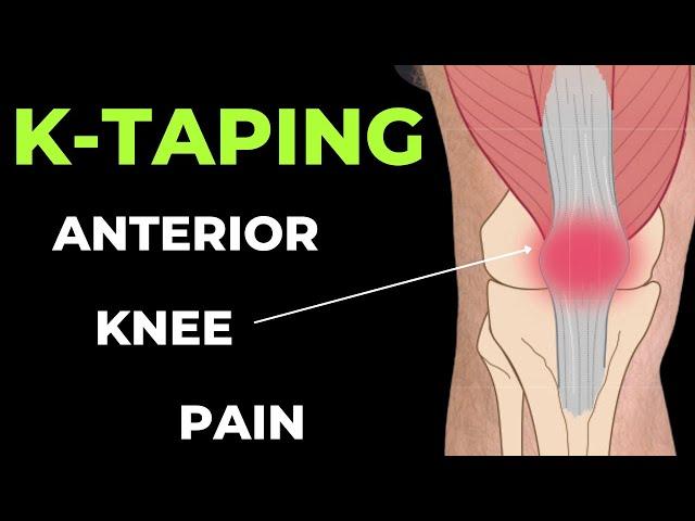 teip a térd artrózisához az artrózis és ízületi gyulladás új kezelései