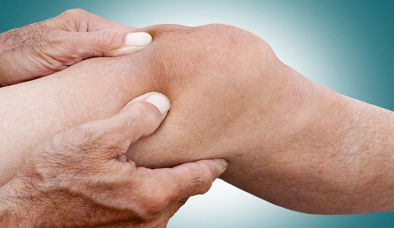 térd hemarthritis kezelése)