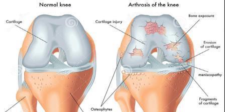 térdízületi kezelés 1. fokozatának gonarthrosis kézi rándulási tünetek kezelése