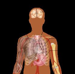 Tüdőgyulladás után ízületi fájdalom. A tüdőgyulladás tünetei