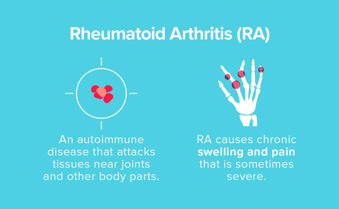 ízületek polyarthritis rheumatoid arthritis)