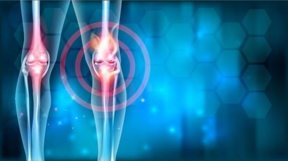 ízületi fájdalom onkológia folyadék halmozódik fel a térdben sérülés után