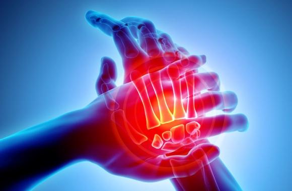 ízületi fájdalom onkológia eszköz az osteochondrozishoz