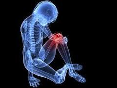 Egy fájdalmas betegség: degeneratív ízületi gyulladás   Gyógyszer Nélkül