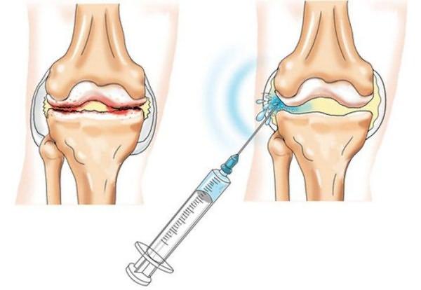 diprospan a váll artrózis kezelésében)