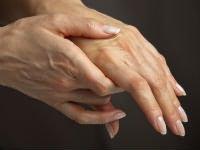 diprospan a váll artrózis kezelésében