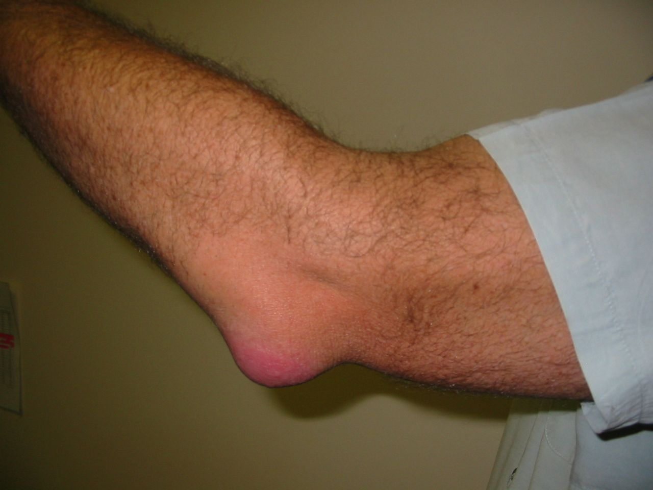 A könyök ízületi gyulladás oka és kezelése