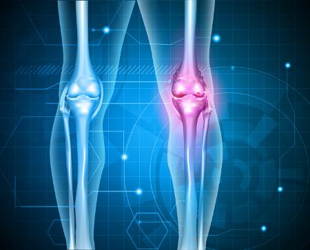 jó gyógyszer a térd artrózisához ha az ízületek fájnak 69-ben