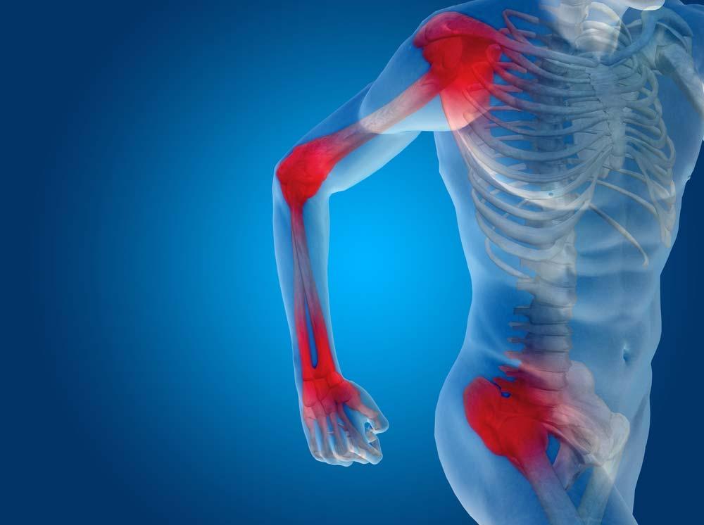 kalcium ízületi fájdalom hiánya)