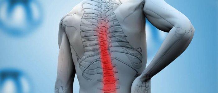 a vállízület kezelése spondylosis)
