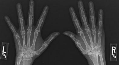 ízületi arthrosis gyógyszeres kezelése)