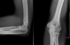 Elülső (ventrális) stabilizáció az ágyéki gerincszakaszon: fúzió