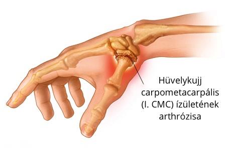 a csuklóízület a bal kezén fáj az ízületek ízületi étrendje és kezelése