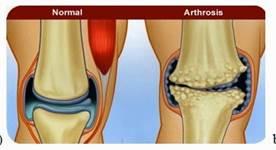 a csípőízület 1. fokának ízületi gyulladása ízületi blokk artrózissal