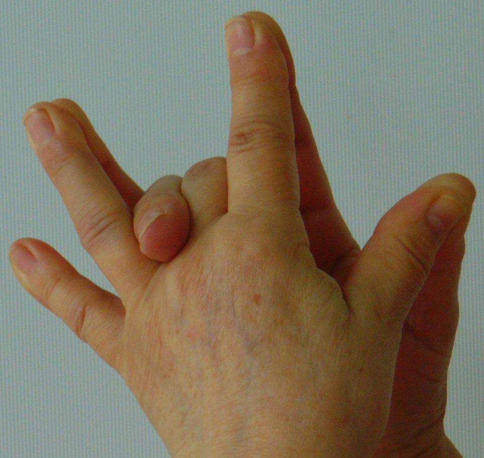 a középső ujj kezelésének ízületi fájdalma)