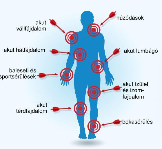 kenőcs ízületi fájdalmak és ízületi fájdalmak kezelésére
