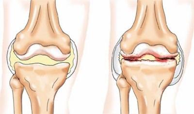 a csípőízületek deformáló artrózisa 2 fokos kezelés