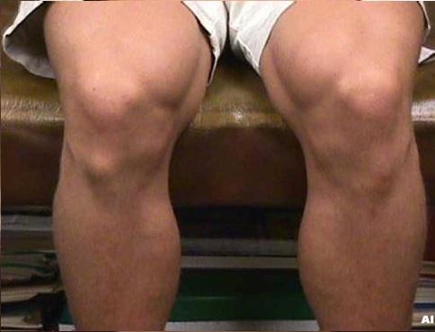 fájdalom a térdben lapos lábakkal
