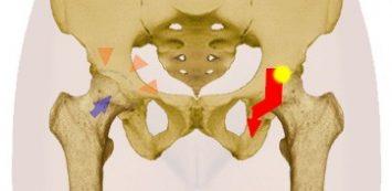 a csípőízület gyulladása
