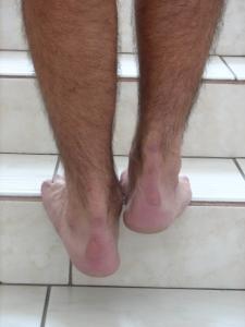 A futók leggyakoribb sérülései: az Achilles gyulladás