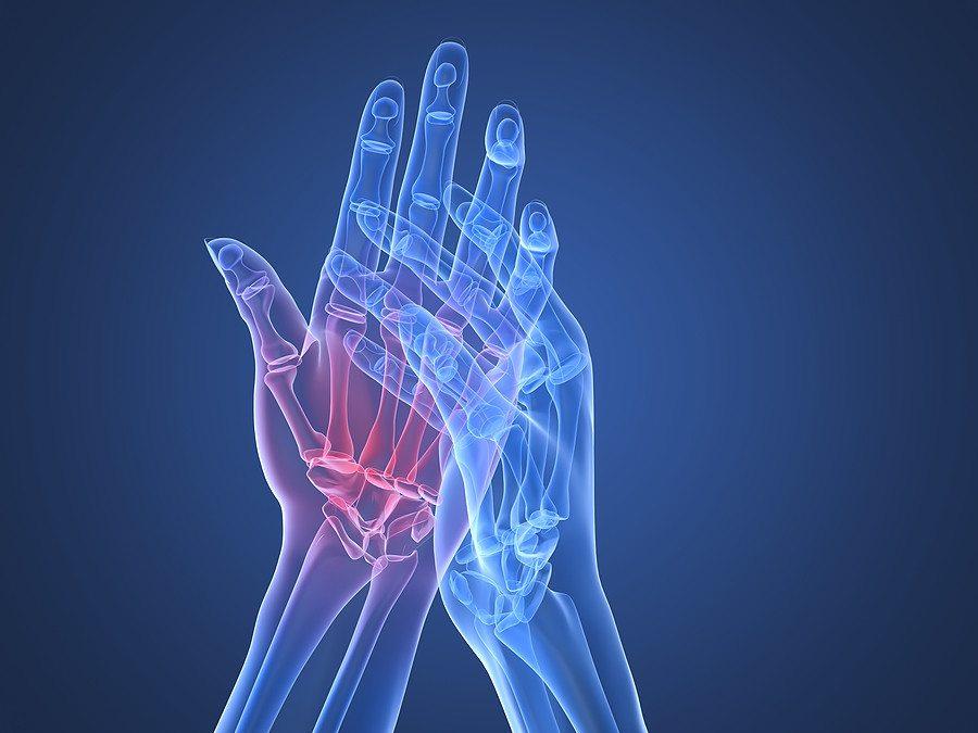 rheumatoid arthritis és arthrosis gyógyszerek kezelése neurológiai váll fájdalom