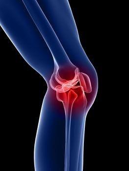 térd lágyrész artrózisa