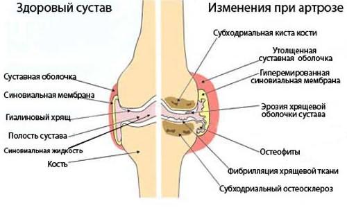 a bal láb 1 lábujjának ízületi gyulladása