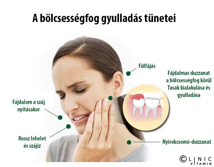 ízületi és fülfájások