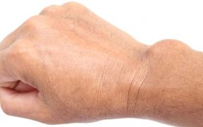 kéz csukló fájdalma sérülés után