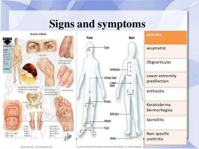 szóda és ízületi fájdalmak fájó lábízületi kezelés
