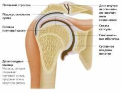 blokád a vállízület artrózisával)